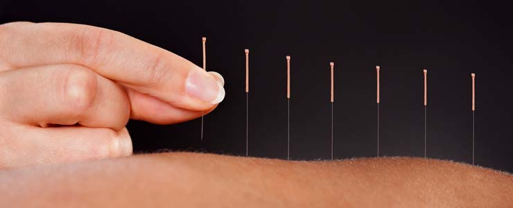 National Spine Care | Downtown Calgary Medical Acupuncture Therapy