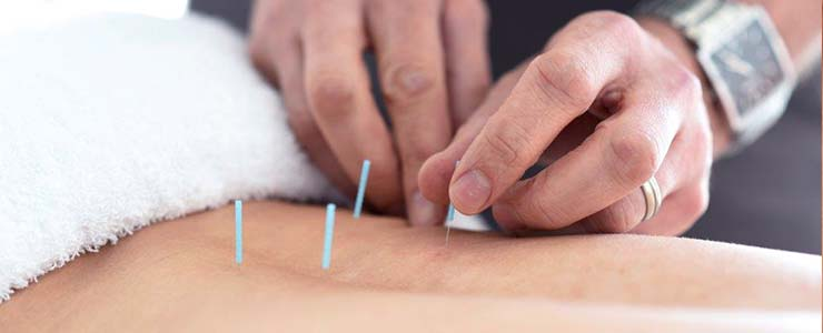National Spine Care | Downtown Calgary IMS Dry Needling
