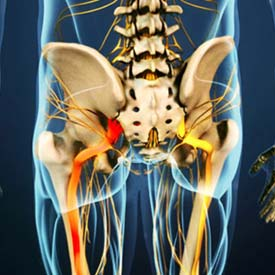 National Spine Care | Sciatica in Calgary